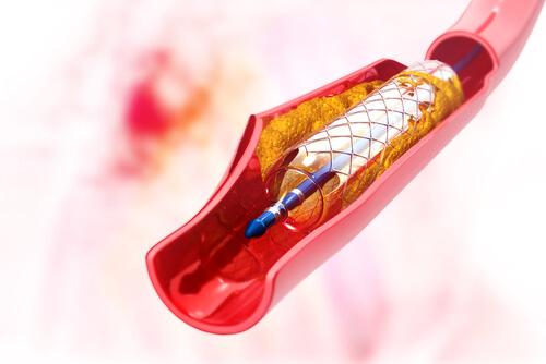 Ilustração stent cardíaco