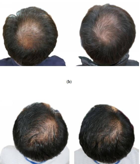 alopecia androgenética óleo sementes abóbora
