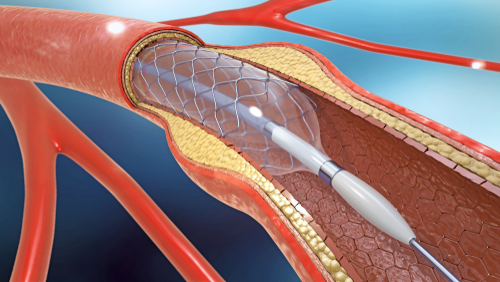 stent cardíaco aterosclerose