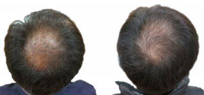 óleo de abóbora dht cabelo calvície