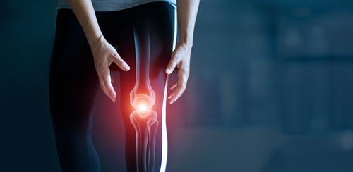 osteoartrite joelhos